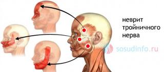 головные боли при инсульте