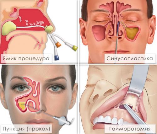 Методы лечения гайморита без прокола