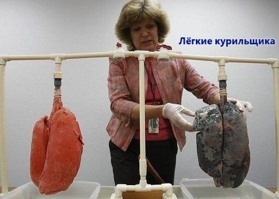 Лёгкие курильщика