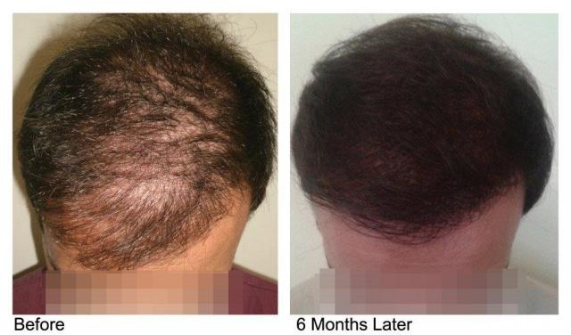 PRP лечение волос для укрепления волос и для усиления пересадки волос