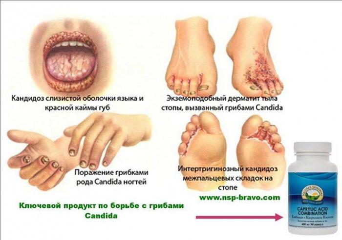 simptomi-vlagalishnogo-gribka