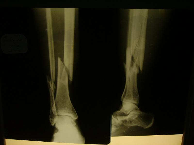 Оскольчатый перелом костей голени со смещением