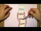 Как жить с остеохондрозом полноценной жизнью Что такое остеохондроз на самом деле