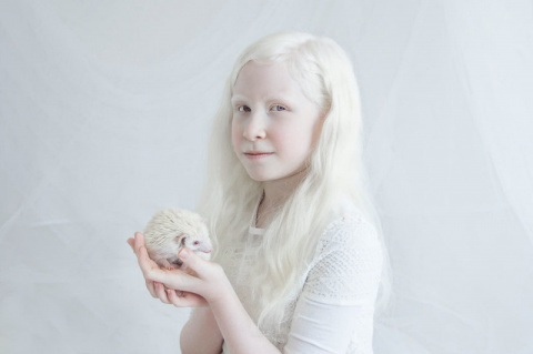 «Фарфоровая красота»: фотопроект о неземном очаровании людей-альбиносов