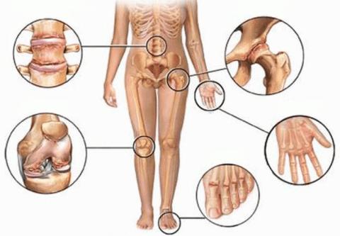 Боль в суставах: 5 натуральн…