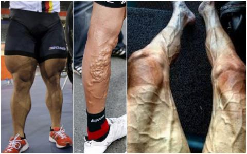 Велосипедисты шокируют видом своих ног! Этот пост лучше не смотреть тем, кто боится варикоза