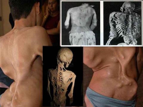 14 болезней, превращающих че…