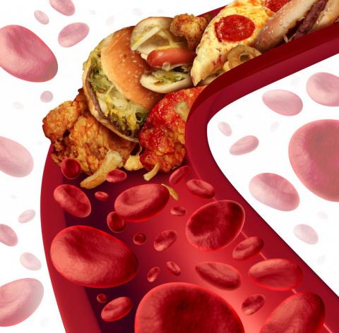 Холестерин. Kрупнейшая афера XX века