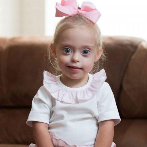 2-летняя девочка с синдромом Дауна стала моделью благодаря своей улыбке