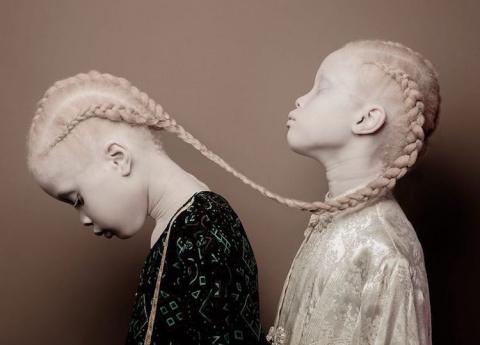 Сёстры-альбиноски покоряют мир моды своей уникальной красотой
