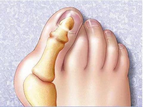 Как вылечить косточку на ноге? Действенные рецепты и приспособления