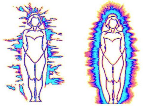 МедПросвет: Анатомия ауры