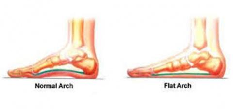 Все, что вам нужно знать о плоскостопии