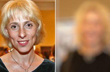 То, как Юлия Рутберг выглядит после пластической операции, шокировало общественность…