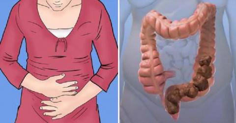 Ошибки в питании дают до 9 кг гадких отложений в кишечнике
