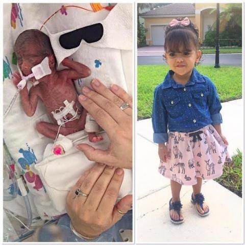 Настоящее чудо: фотографии малышей, родившихся раньше срока, но сумевших выжить