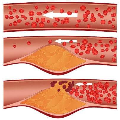 Атеросклероз. Народные метод…