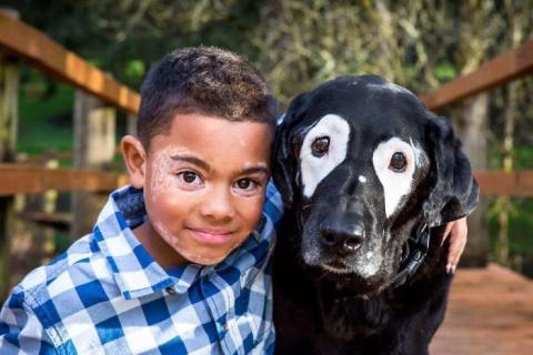 Мальчик с редким заболеванием кожи ненавидел свой внешний вид, пока не встретил такую же собаку