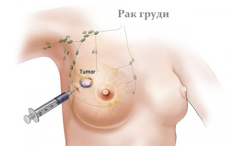 Лучшие суперпродукты, которые помогают бороться с раком молочной железы!