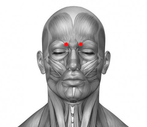 Эффективная техника снятия головной боли и мигрени