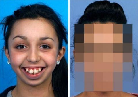 Невероятное преображение девушки после пластической коррекции челюсти