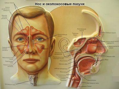 Синусит — симптомы и лечение
