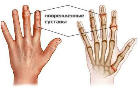 Как вылечить суставы пальцев…
