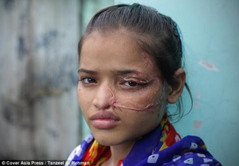 Родной отец облил ее кислотой. Девушка выложила в сеть фотографии с результатом операции