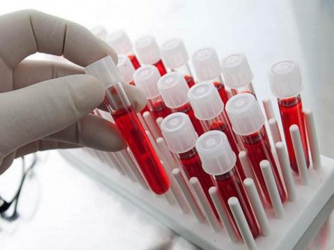 Эти факты о своей группе крови должен знать каждый