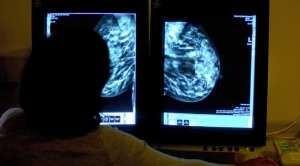 Анализ крови определит рак д…