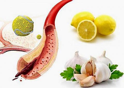 Как чесноком почистить сосуды от холестериновых бляшек?