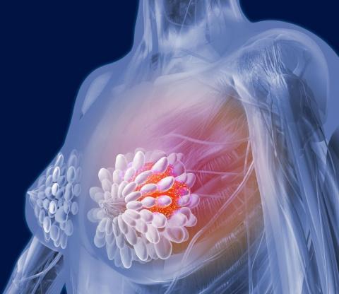 Это необходимо знать, чтобы не умереть от рака молочной железы