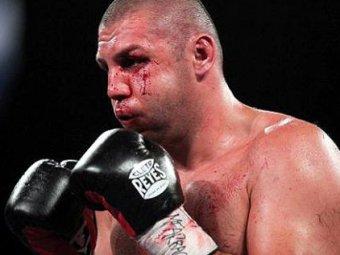 Штат Нью-Йорк заплатит семье жестоко избитого на ринге российского боксера $22 млн