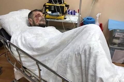 В Киеве пытались убить депутата ВР Игоря Мосийчука