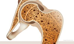 Ученые успешно провели испытание костного имплантата из полиэтилена