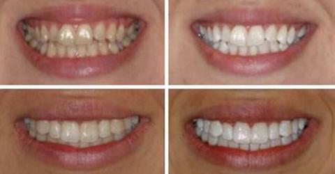 Эффективное отбеливание зубо…