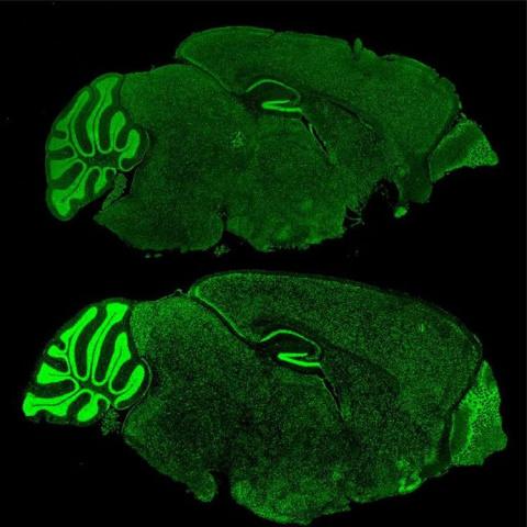 Картинка дня: мозг при синдроме ломкой Х-хромосомы