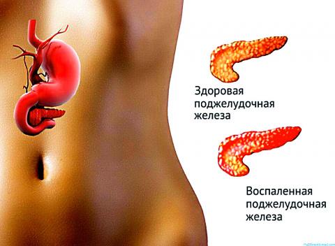 10 вкусных продуктов для здоровья поджелудочной железы
