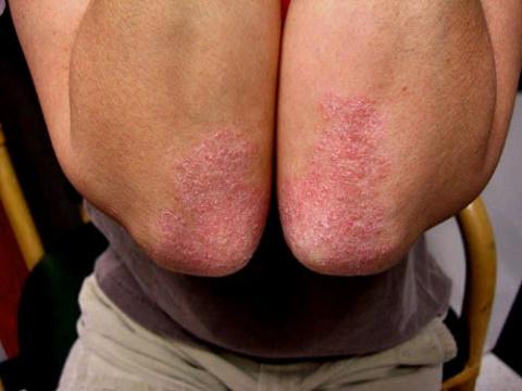 Лечение народными средствами псориаза