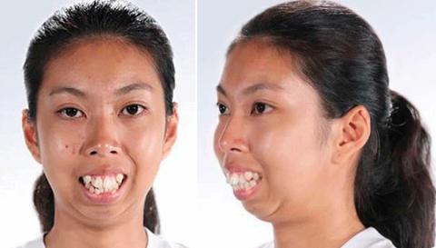 Торчащие зубы и выпирающая ч…