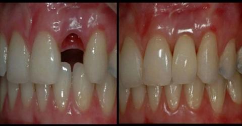 Вырастить новые зубы за 9 не…