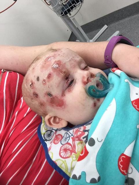 Мать ребенка, госпитализированного с тяжелой болезнью, просит всех родителей задуматься о вакцинации