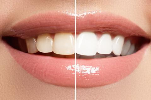 Отбеливание зубов и укреплен…