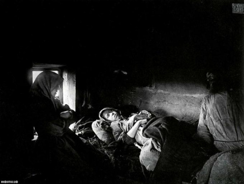 """Сифилис: откуда взялась """"самая позорная болезнь"""""""