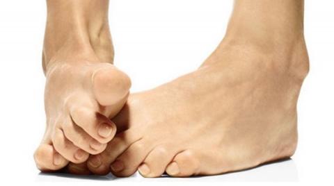 Лечение шишек на ногах народными средствами