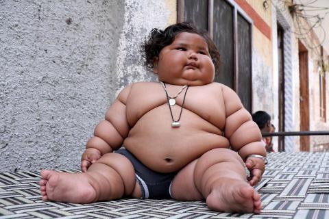 Индийская 8-месячная девочка страдает ожирением
