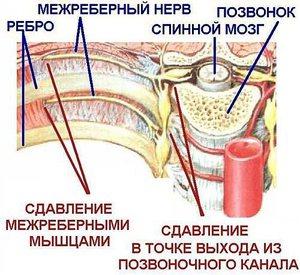 МЕЖРЕБЕРНАЯ НЕВРАЛГИЯ. Народные методы лечения