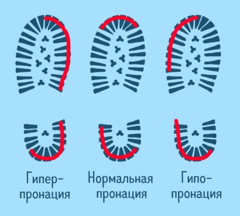 5 доказательств того, что ваша походка небезопасна