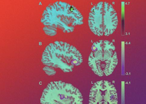 Умение прощать разглядели в структуре головного мозга