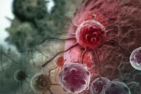 Как распознать рак на ранней стадии?